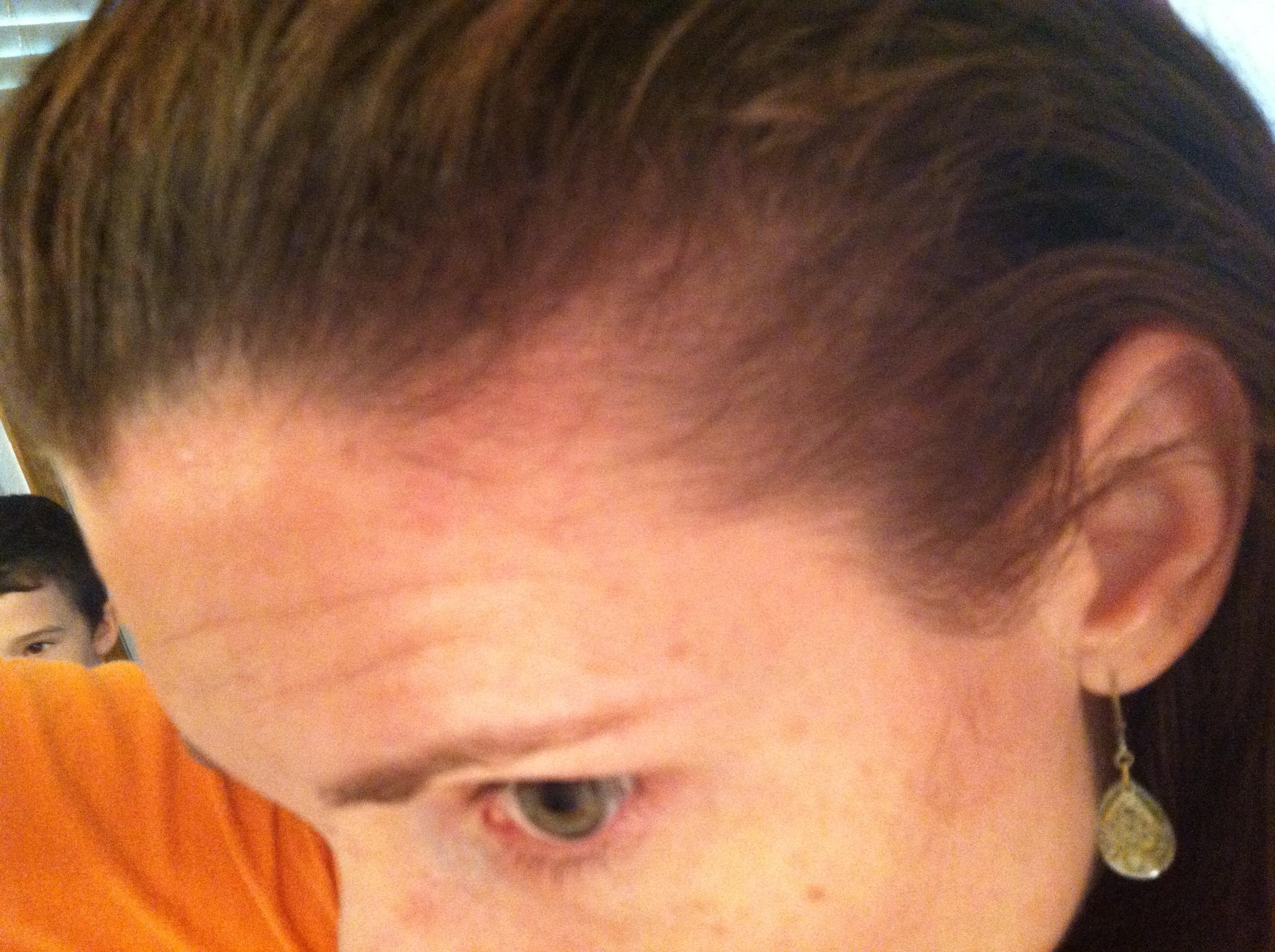 Receding hairline treatment yahoo dating 3
